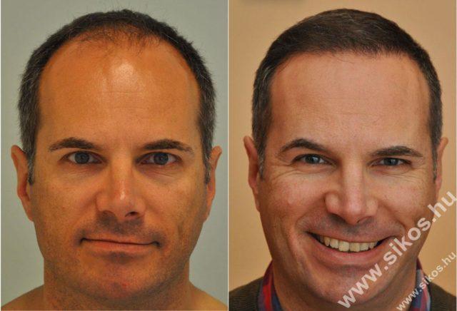 Egyre gyakoribb a hajátültetés
