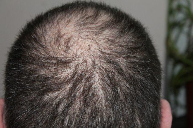 A hajhullás elleni szerek meghozhatják a várt eredményt